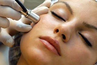 dermoabrasión facial