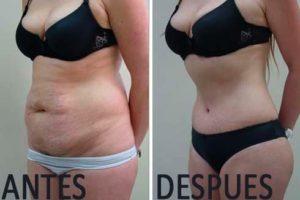 lipectomía antes y después