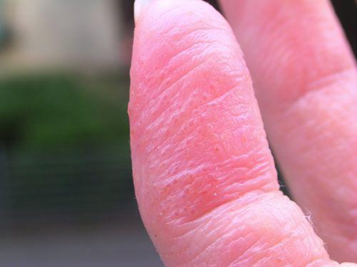 dishidrosis en el dedo