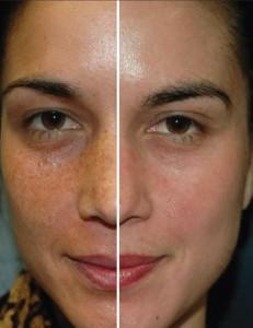 antes y después de un peeling químico
