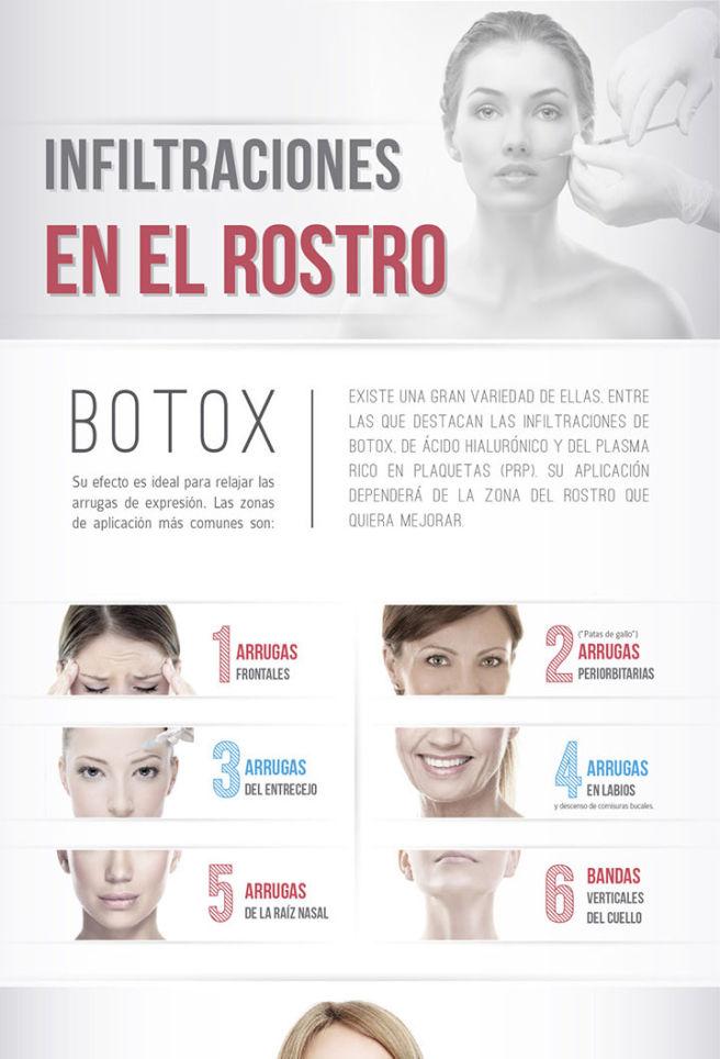 infografía botox