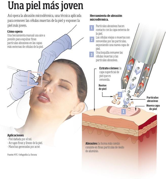 abrasión microdérmica