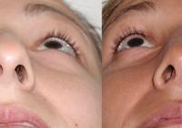 antes y después de la septoplastia nasal