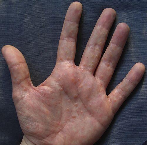 dishidrosis en las manos